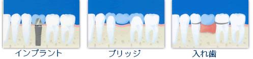 歯の無い所の治療法の選択